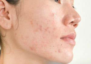 Por qué sale acné - HeelEspaña