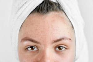 ¿Cuál es la bacteria causante del acné? - HeelEspaña