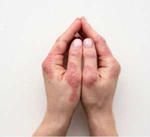La psoriasis es una enfermedad frecuente de la piel - Heelespaña