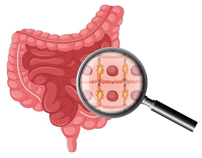 Síntomas principales de la obstrucción intestinal - HeelProbiotics - HeelEspaña