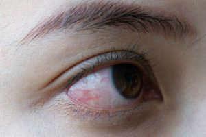 Causas y síntomas de rinitis - HeelEspaña