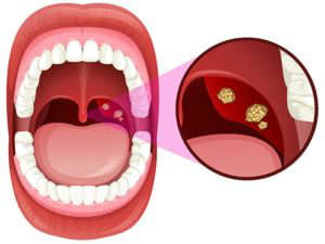 Cómo se cura la faringoamigdalitis aguda - HeelEspaña