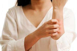 Urticaria por frío: tratamiento - HeelEspaña