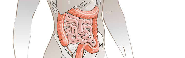 Restauración de la microbiota intestinal