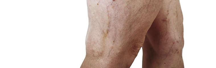 Insuficiencia venosa crónica | Salud de las piernas
