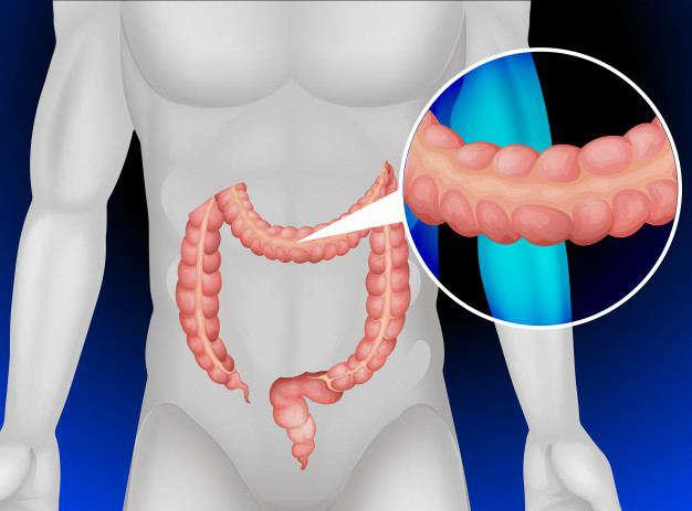 Estreñimiento y microbiota intestinal: intestino grueso - HeelEspaña
