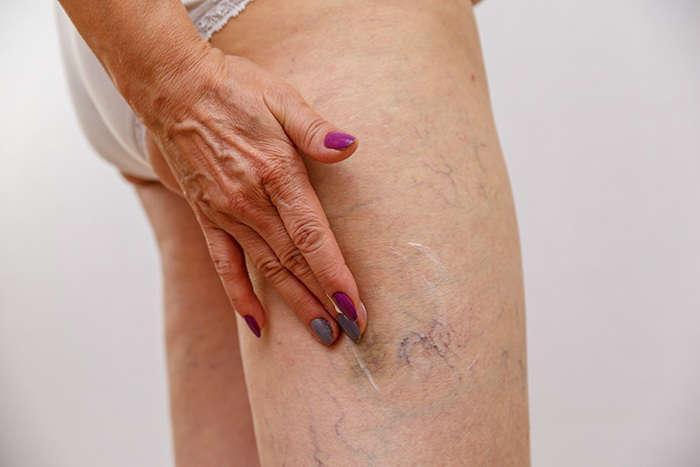 Hormigueo: síntoma de la insuficiencia venosa crónica