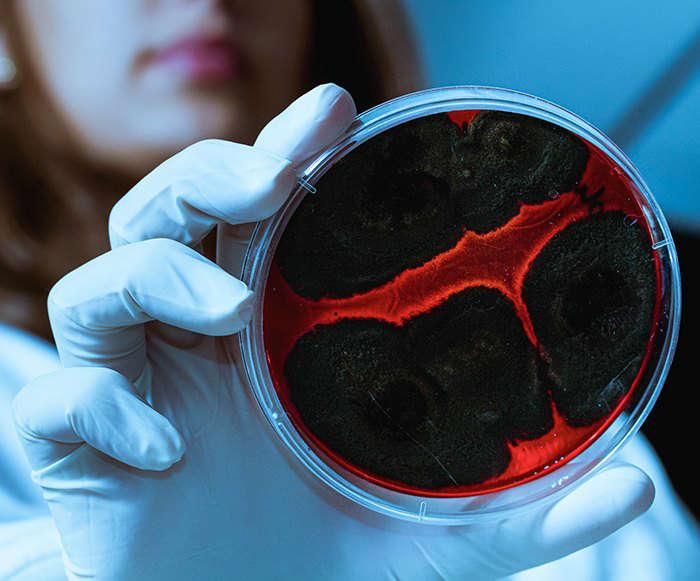 Últimas evidencias de la relación entre microbiota y alergia