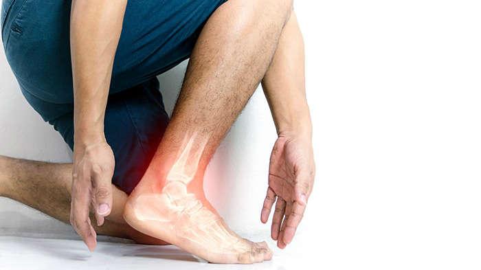 Tener una fractura: causa de pies y piernas hinchados