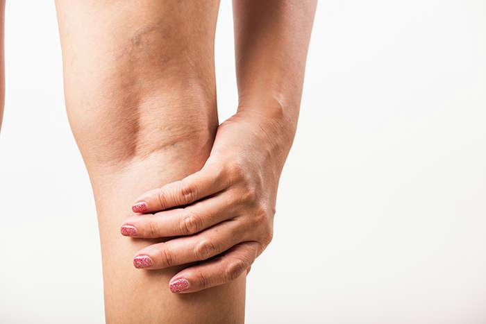 Tratamiento para las varices en las piernas: mala circulacion tratamiento varices - HeelEspaña