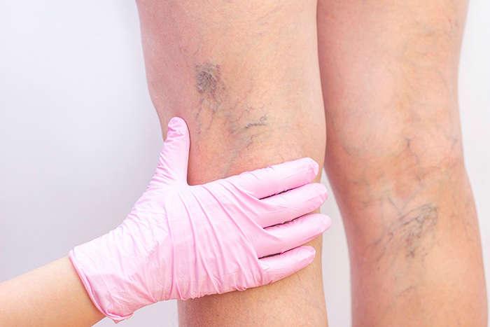 Método: tratamiento para las varices