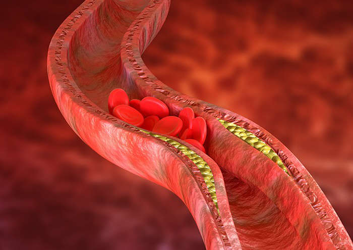 Cómo afecta: tabaquismo y salud arterial