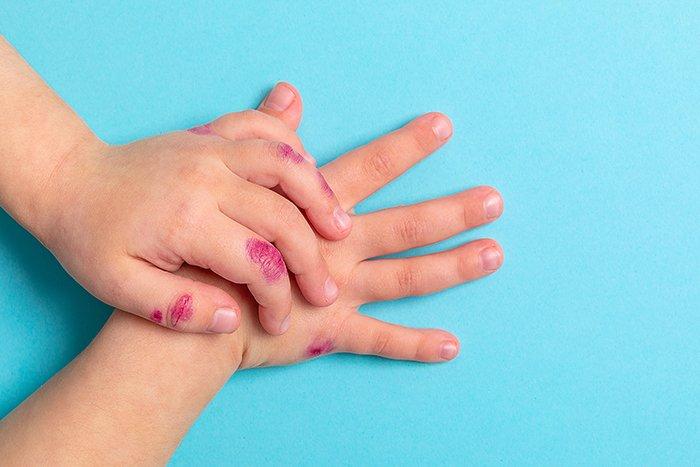 Las manifestaciones de la piel por COVID-19 en los más pequeños
