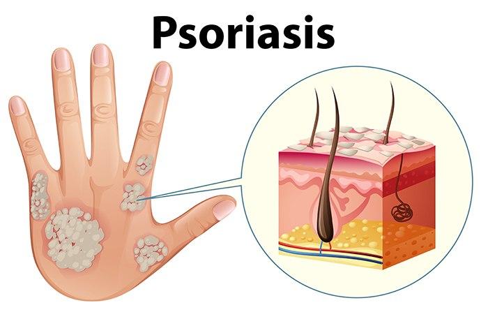Por qué se da relación entre psoriasis y sistema inmune