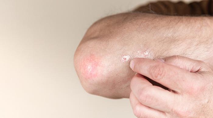 Problemas cutáneos: relación intestino y piel