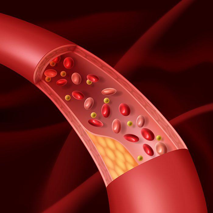 Factores que provocan riesgo cardiovascular