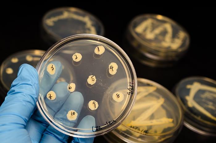Por qué hay cambios en el microbioma de la piel