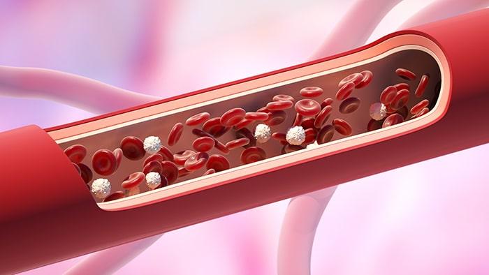 Prevención del edema y la retención de líquidos en verano