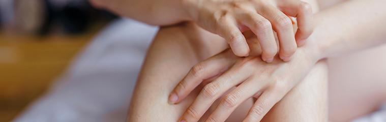 Psoriasis en las manos   Síntomas y tratamiento